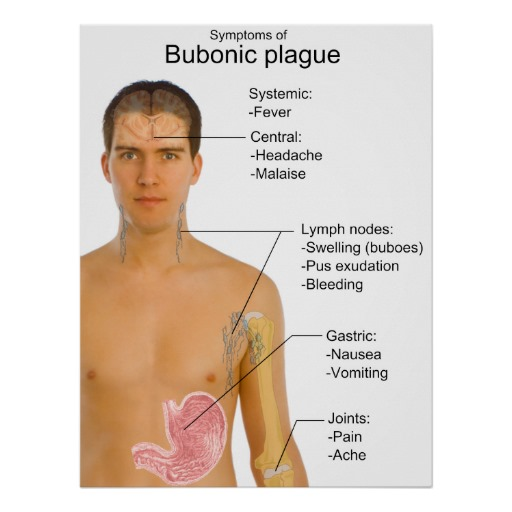 Bubonic Plague Outbreak Imminent